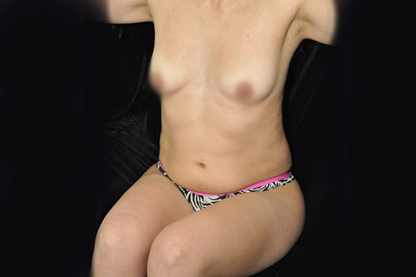 abdomen1-b