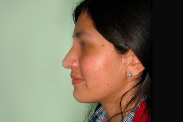 rinoplastia-4b